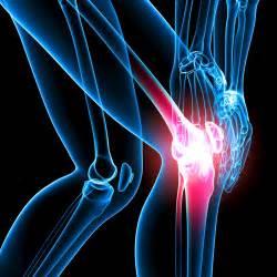 Artrosis. Medicina natural para combatirla.